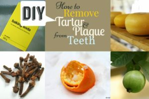 Home Remedies to Remove Tartar
